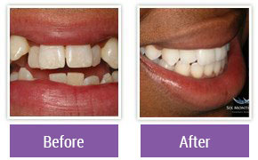 Dentist in Northeast Philadelphia - Gallery Image 08