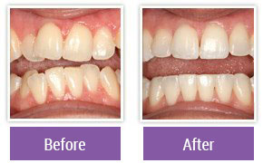 Dentist in Northeast Philadelphia - Gallery Image 10