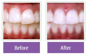 Dentist in Northeast Philadelphia - Gallery Image 11
