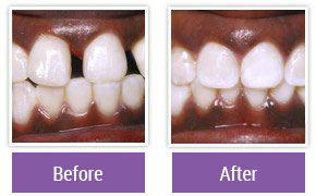 Dentist in Northeast Philadelphia - Gallery Image 12