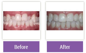 Philadelphia Invisalign - Invisalign Before and After Case 1
