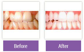 Philadelphia Invisalign - Invisalign Before and After Case 2
