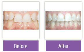 Philadelphia Invisalign - Invisalign Before and After Case 3