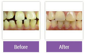 Philadelphia Invisalign - Invisalign Before and After Case 4