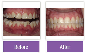 Invisalign Philadelphia PA - Invisalign Before and After Case 5