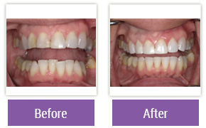 Invisalign Philadelphia PA - Invisalign Before and After Case 6