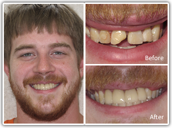 Cosmetic Dentist Philadelphia - Before and After Cosmetic Denistry Images 1