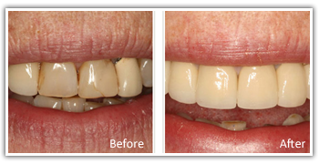 Cosmetic Dentist Philadelphia - Before and After Cosmetic Denistry Images 2