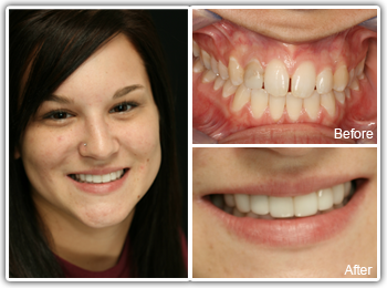Porcelain Veneers Philadelphia - Before and After Veneers Images
