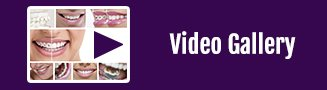 Video Galley Button